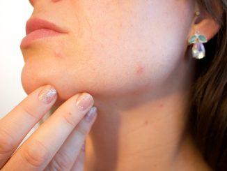 Cicatrices de l'acné
